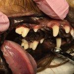 Po odstranění zubního kamane ultrazvukem